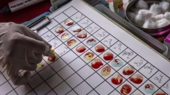 «Έξυπνο» τεστ αίματος ανιχνεύει με ακρίβεια πάνω από 50 είδη καρκίνου