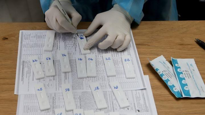 Κορονοϊός: 3.407 νέα κρούσματα, 34 θάνατοι, 347 διασωληνωμένοι, εκ των οποίων το 88,18% είναι ανεμβολίαστοι